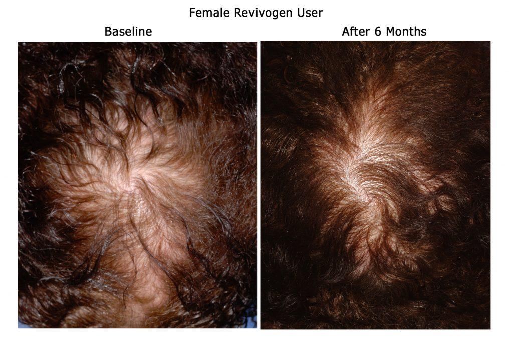 Revivogen Shampoo trattamento anti-diradamento capelli