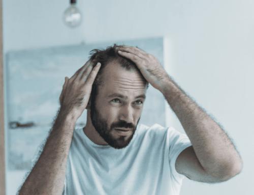 Caduta dei capelli stagionale